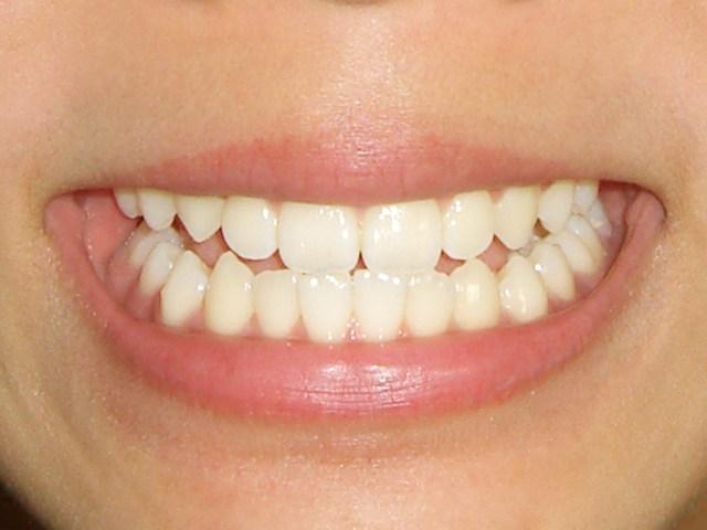 歯が黄ばんでしまう原因