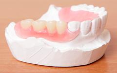義歯について