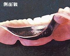 金属床義歯側面観