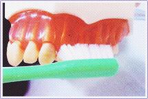 歯面に対してまっすぐ側面